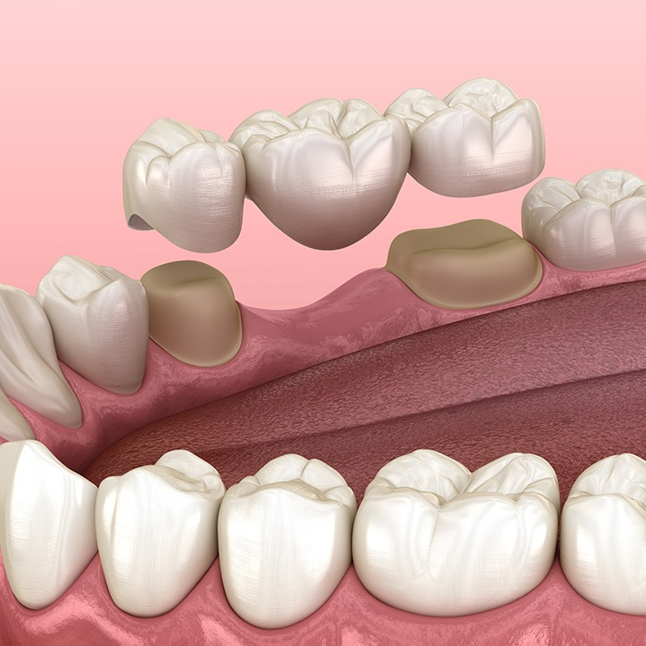 Animated dental bridge placement